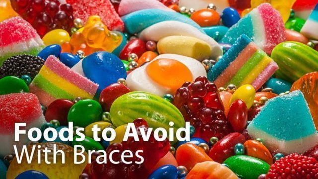 Foods to avoid after a braces adjustment