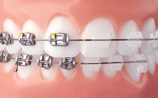 Clear bracket braces vs metal