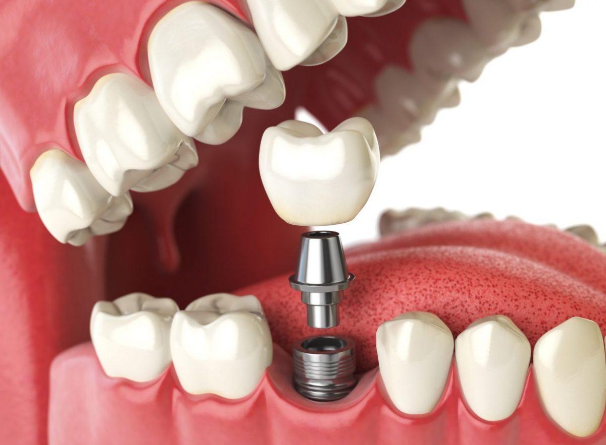 Cuanto Cuesta Un Implante Dental En Estados Unidos?