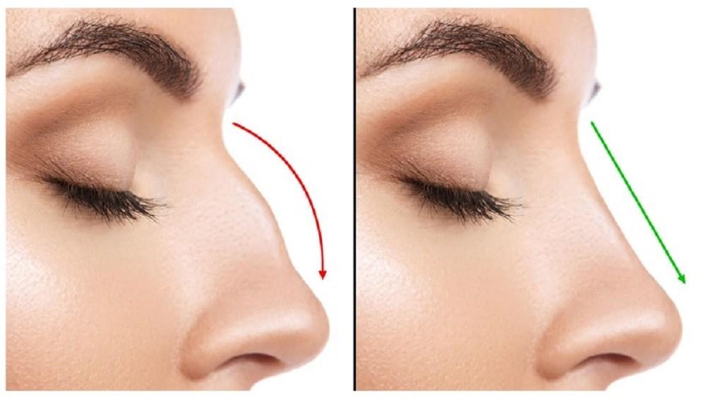 ¿Cuánto cuesta una cirugía de nariz? Rinoplastia